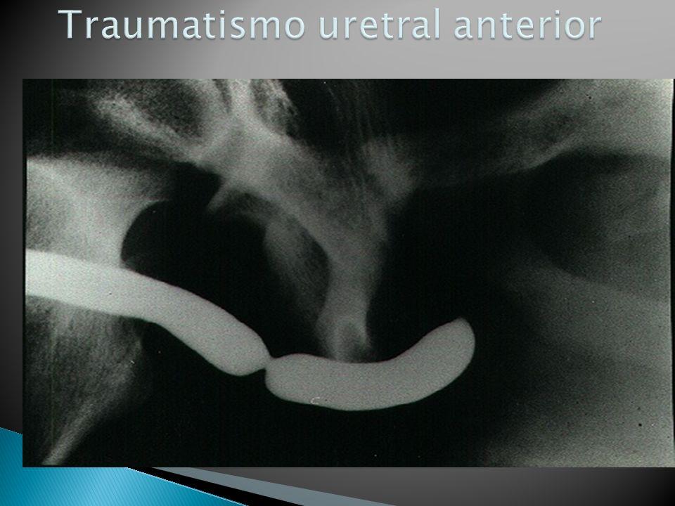 Traumatismo uretral anterior