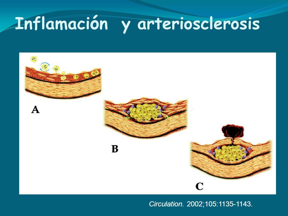 Inflamación y arteriosclerosis