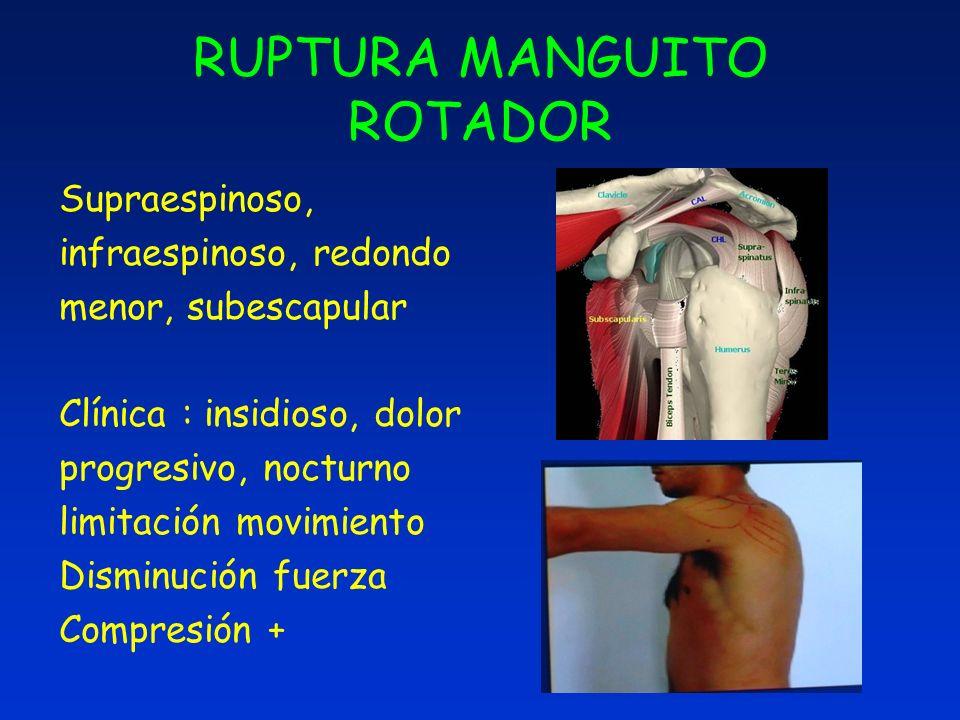 RUPTURA MANGUITO ROTADOR