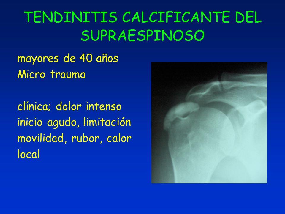 TENDINITIS CALCIFICANTE DEL SUPRAESPINOSO