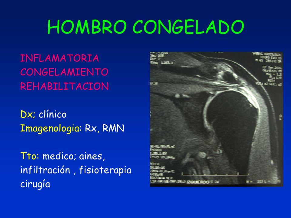 HOMBRO CONGELADO INFLAMATORIA CONGELAMIENTO REHABILITACION Dx; clínico
