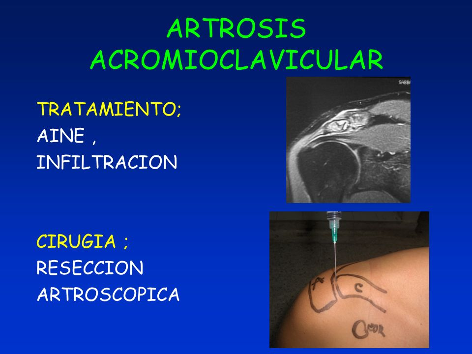 ARTROSIS ACROMIOCLAVICULAR