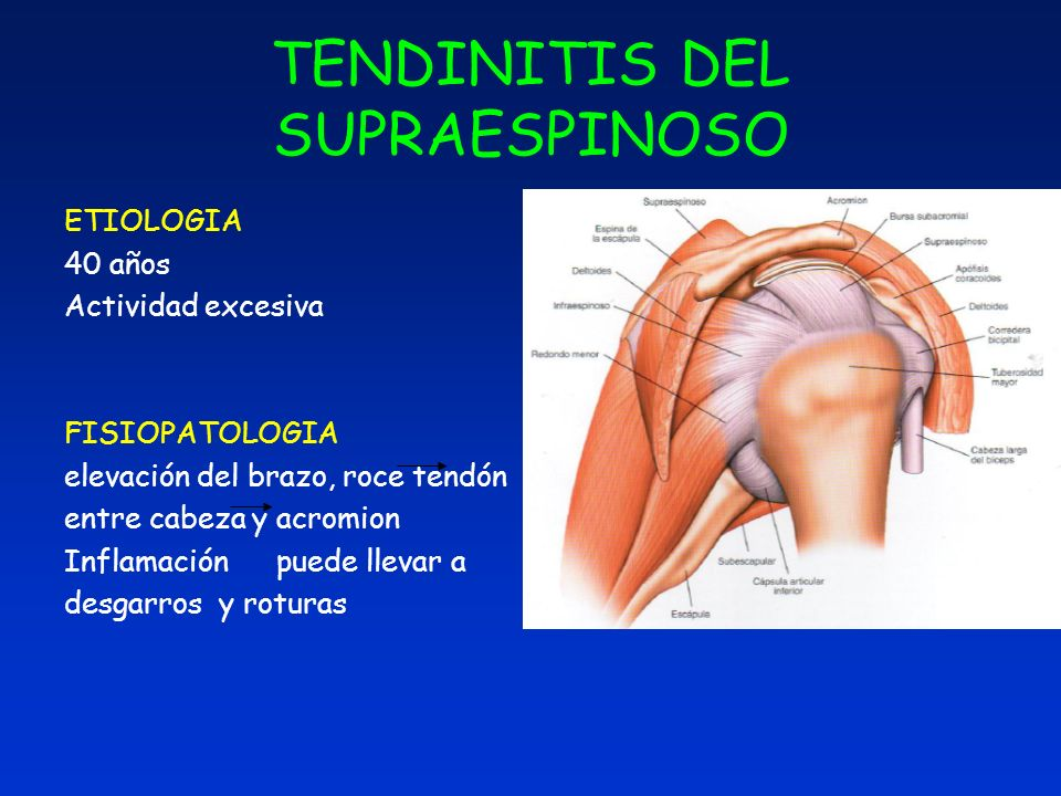 TENDINITIS DEL SUPRAESPINOSO