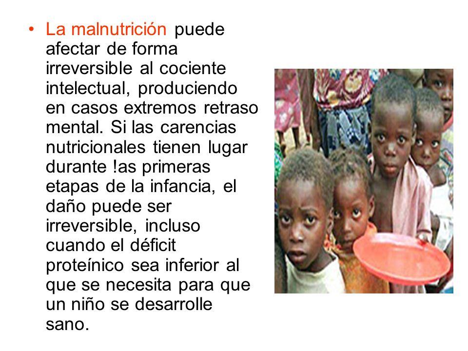 La malnutrición puede afectar de forma irreversible al cociente intelectual, produciendo en casos extremos retraso mental.