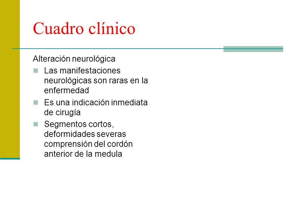 Cuadro clínico Alteración neurológica