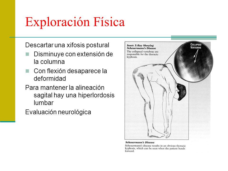 Exploración Física Descartar una xifosis postural