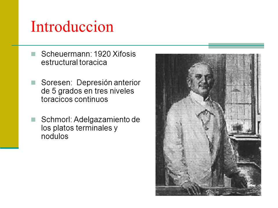 Introduccion Scheuermann: 1920 Xifosis estructural toracica