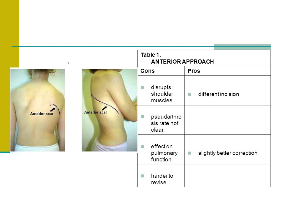 Table 1. ANTERIOR APPROACH
