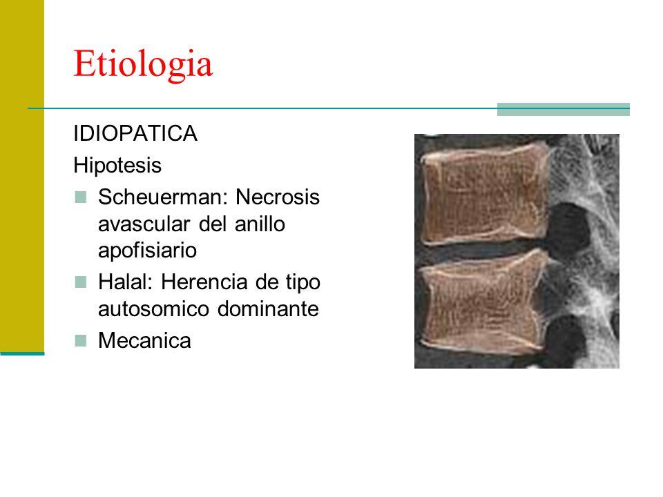 Etiologia IDIOPATICA Hipotesis
