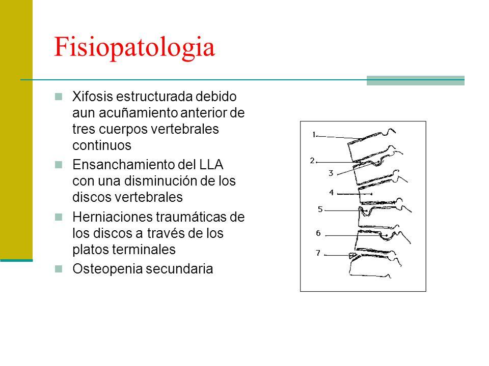 Fisiopatologia Xifosis estructurada debido aun acuñamiento anterior de tres cuerpos vertebrales continuos.