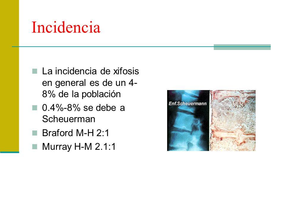 Incidencia La incidencia de xifosis en general es de un 4-8% de la población. 0.4%-8% se debe a Scheuerman.