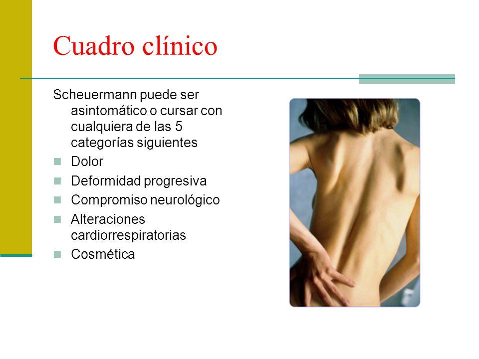 Cuadro clínico Scheuermann puede ser asintomático o cursar con cualquiera de las 5 categorías siguientes.