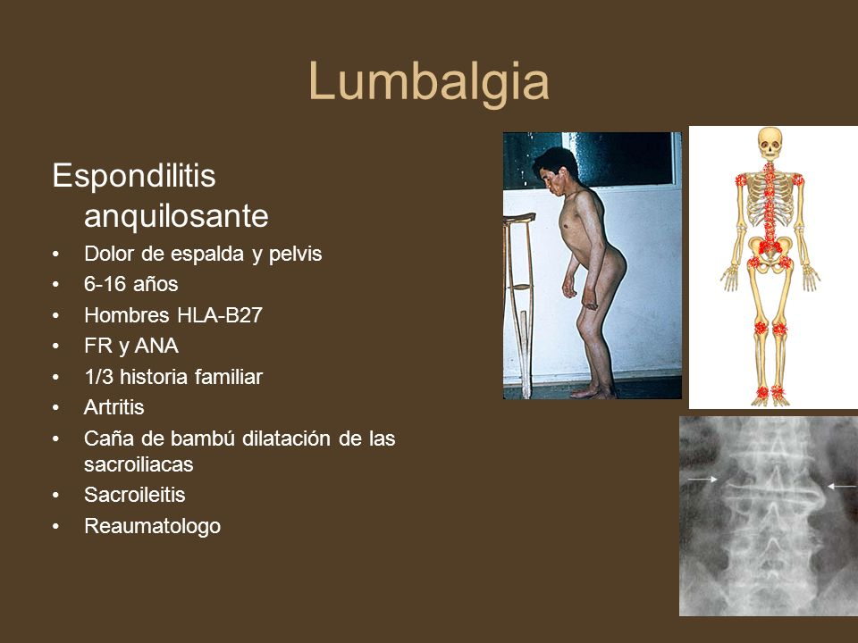 Lumbalgia Espondilitis anquilosante Dolor de espalda y pelvis