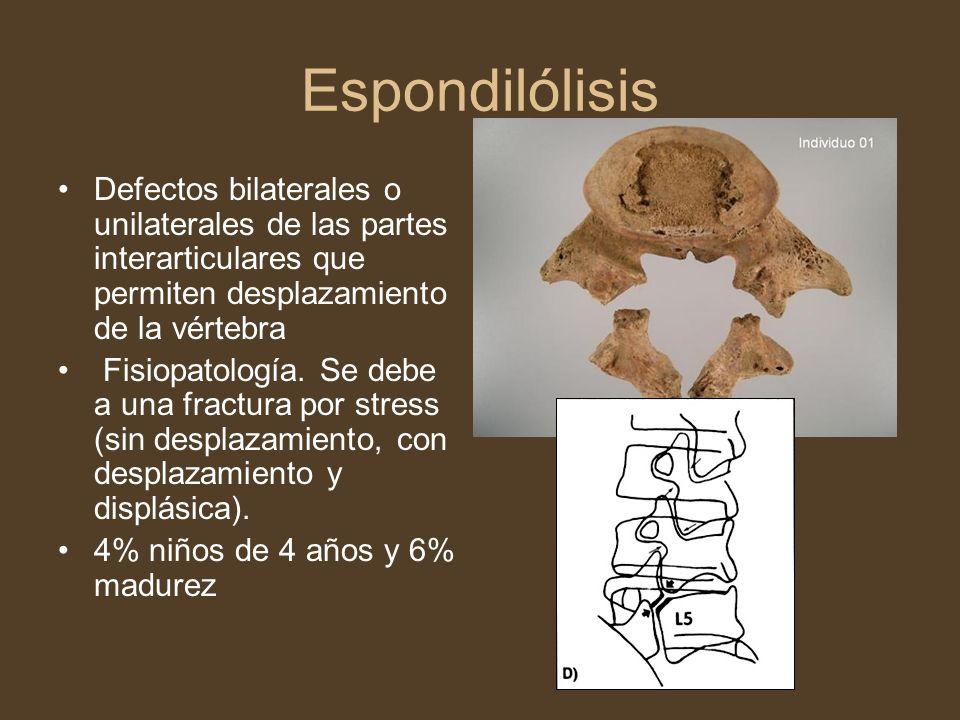 Espondilólisis Defectos bilaterales o unilaterales de las partes interarticulares que permiten desplazamiento de la vértebra.