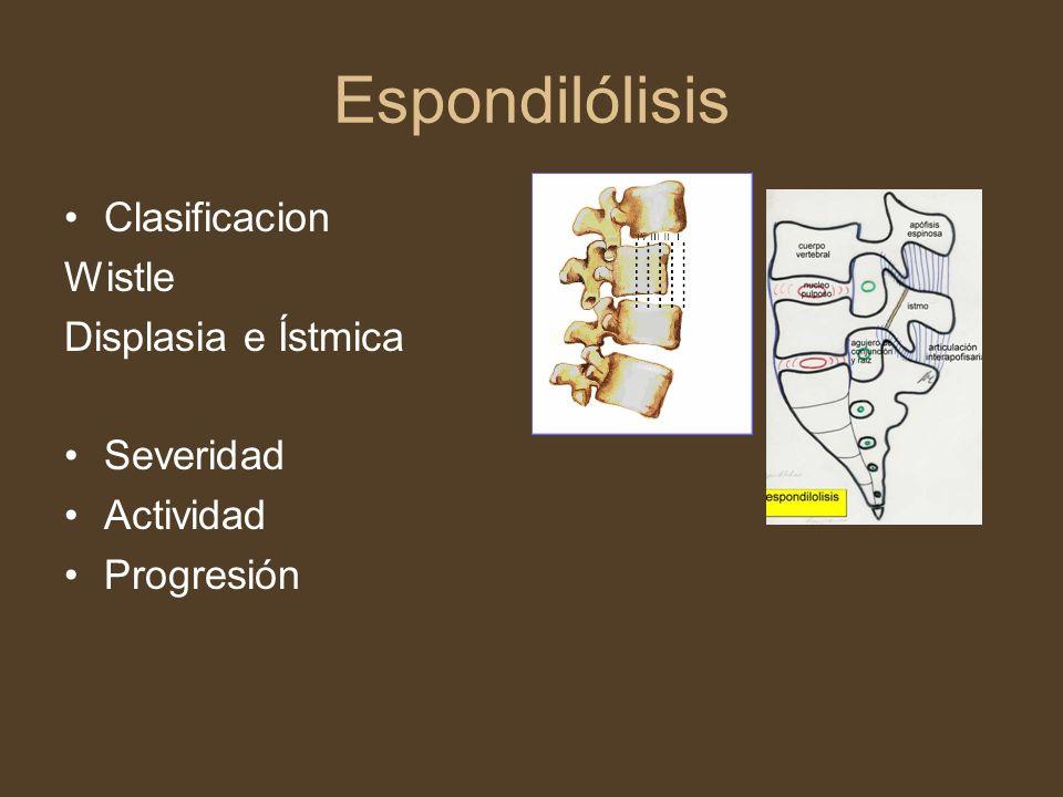 Espondilólisis Clasificacion Wistle Displasia e Ístmica Severidad