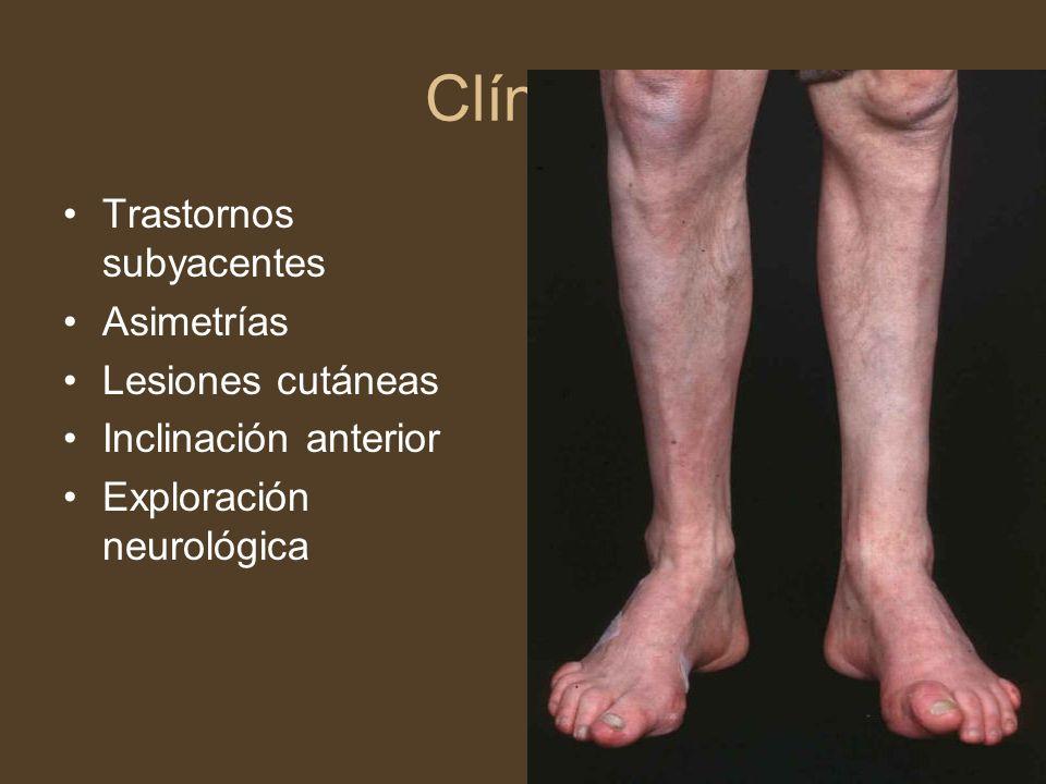 Clínica Trastornos subyacentes Asimetrías Lesiones cutáneas