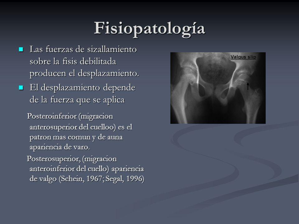 Fisiopatología Las fuerzas de sizallamiento sobre la fisis debilitada producen el desplazamiento.