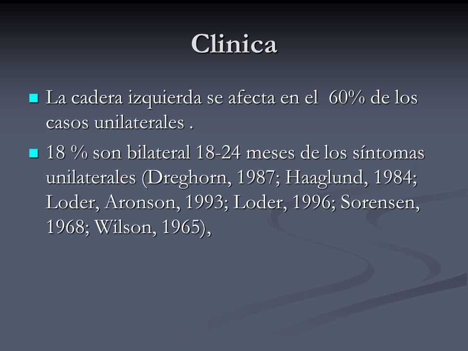 Clinica La cadera izquierda se afecta en el 60% de los casos unilaterales .