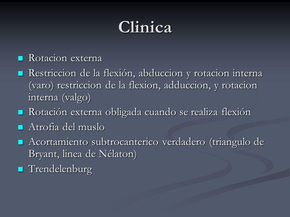 Clinica Rotacion externa