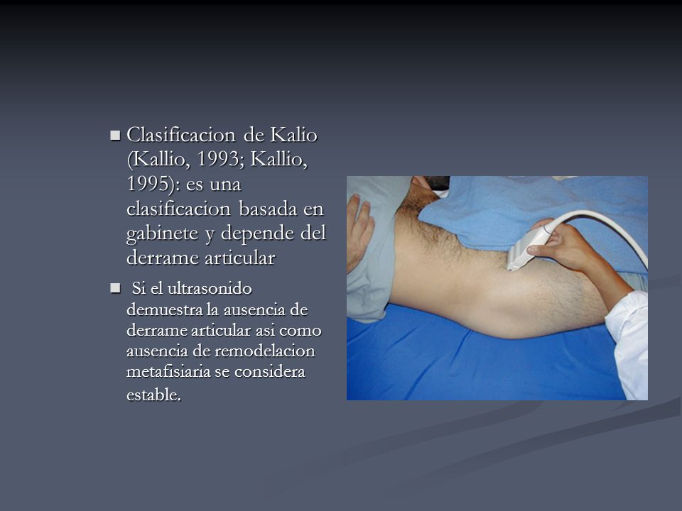 Clasificacion de Kalio (Kallio, 1993; Kallio, 1995): es una clasificacion basada en gabinete y depende del derrame articular