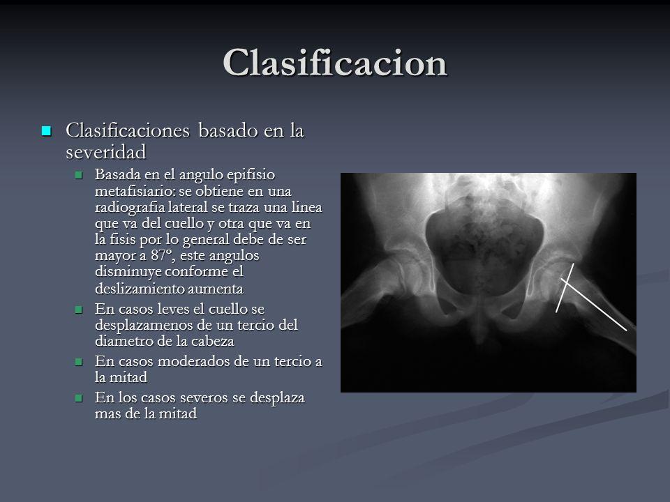 Clasificacion Clasificaciones basado en la severidad