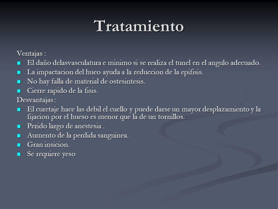 Tratamiento Ventajas :