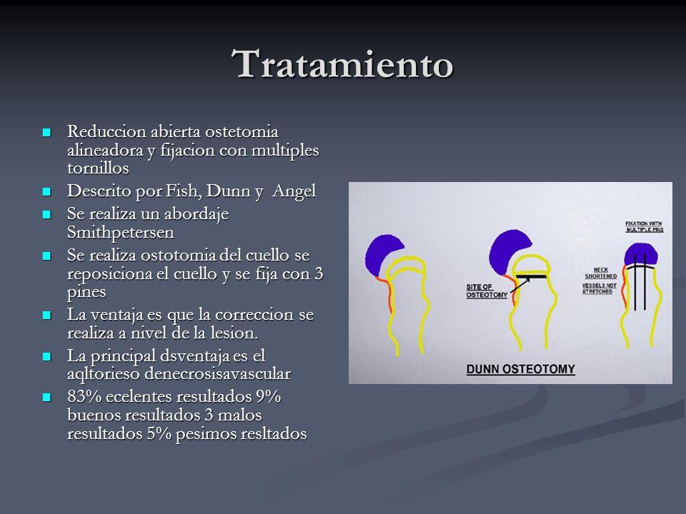 Tratamiento Reduccion abierta ostetomia alineadora y fijacion con multiples tornillos. Descrito por Fish, Dunn y Angel.