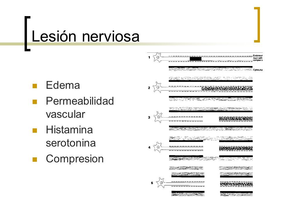 Lesión nerviosa Edema Permeabilidad vascular Histamina serotonina