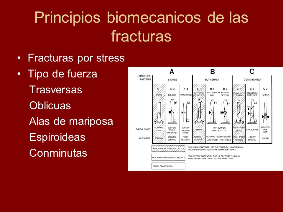 Principios biomecanicos de las fracturas