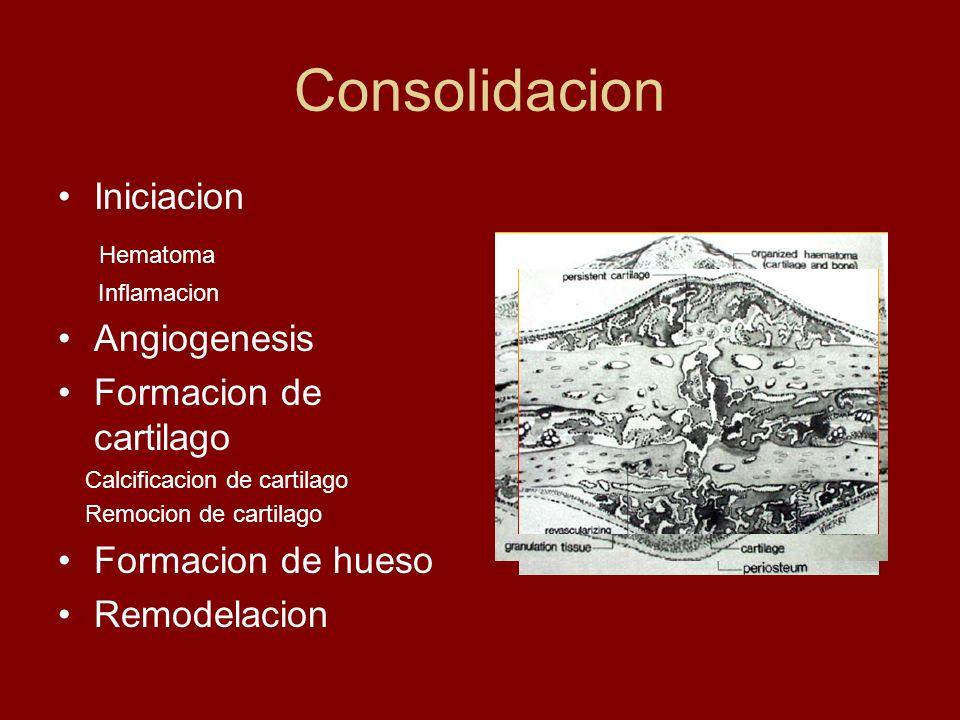 Consolidacion Iniciacion Hematoma Angiogenesis Formacion de cartilago