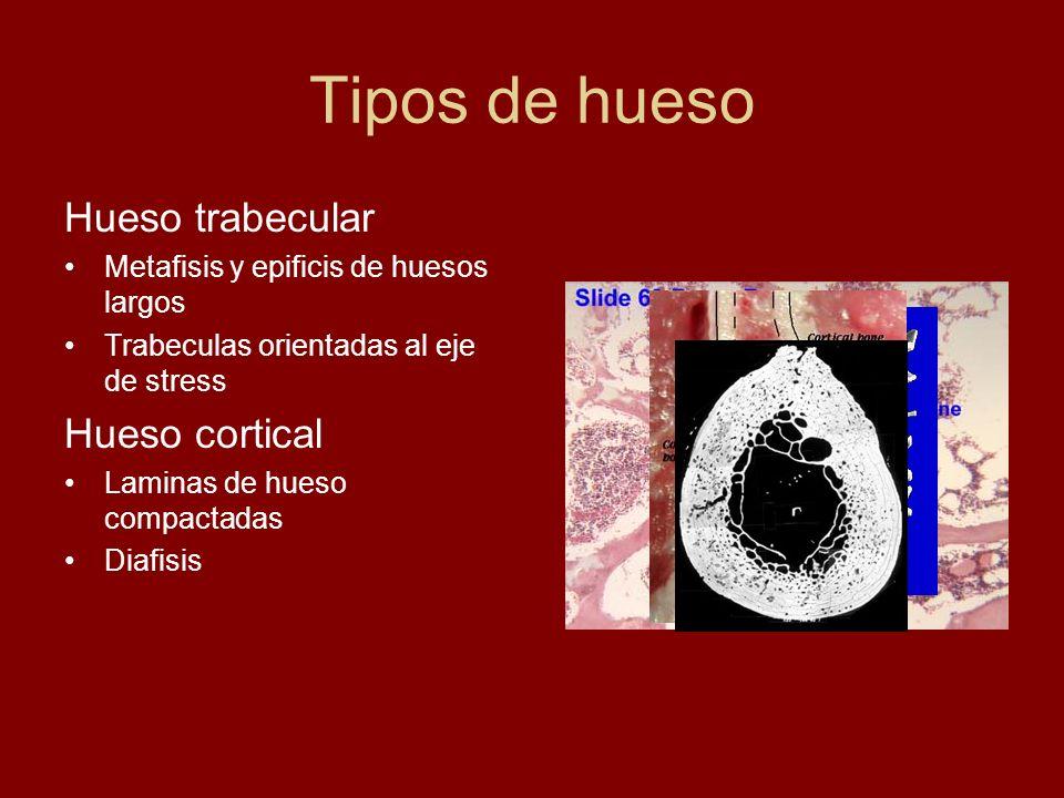 Tipos de hueso Hueso trabecular Hueso cortical