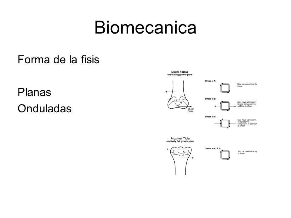Biomecanica Forma de la fisis Planas Onduladas