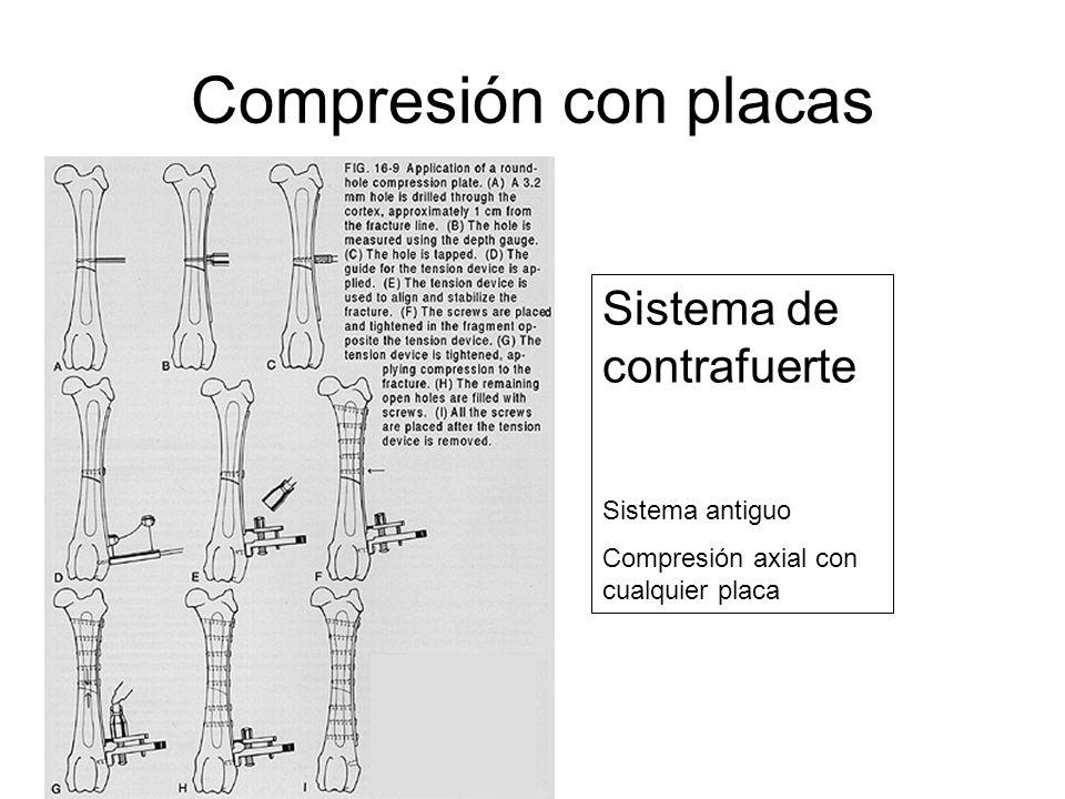 Compresión con placas Sistema de contrafuerte Sistema antiguo