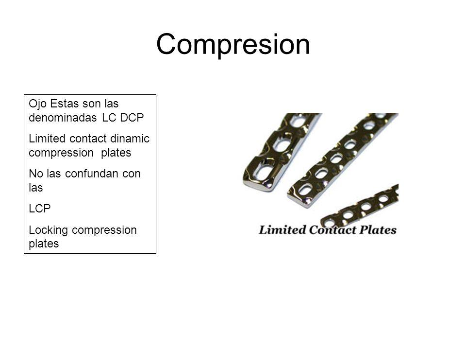 Compresion Ojo Estas son las denominadas LC DCP