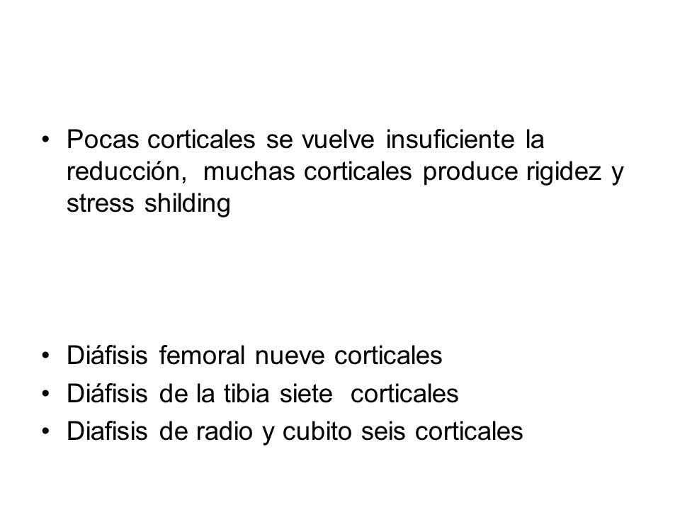 Pocas corticales se vuelve insuficiente la reducción, muchas corticales produce rigidez y stress shilding