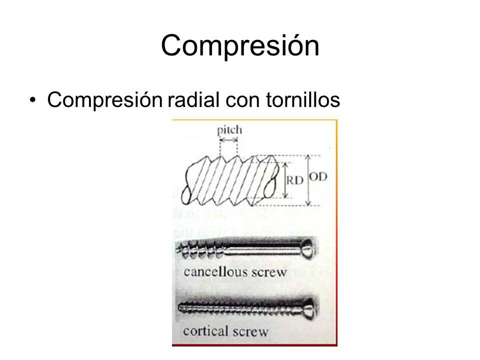 Compresión Compresión radial con tornillos