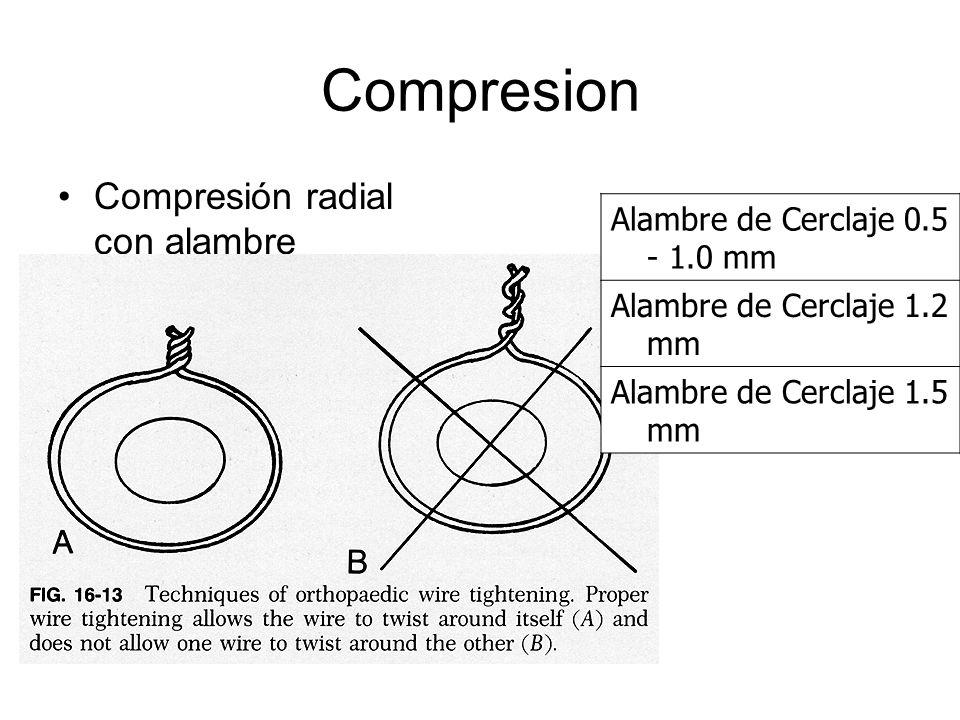 Compresion Compresión radial con alambre