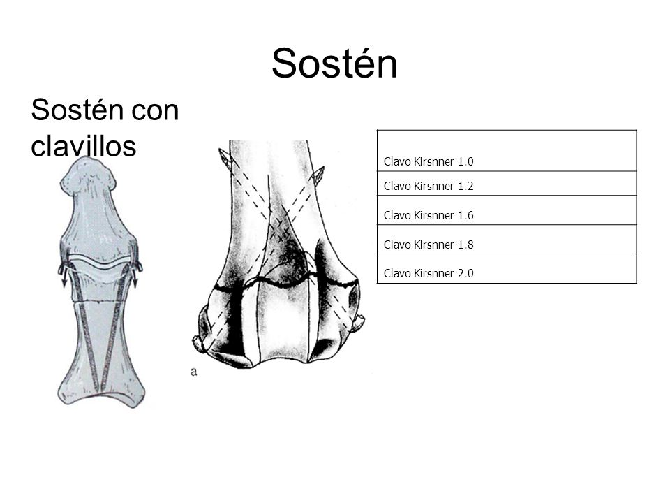 Sostén Sostén con clavillos Clavo Kirsnner 1.0 Clavo Kirsnner 1.2