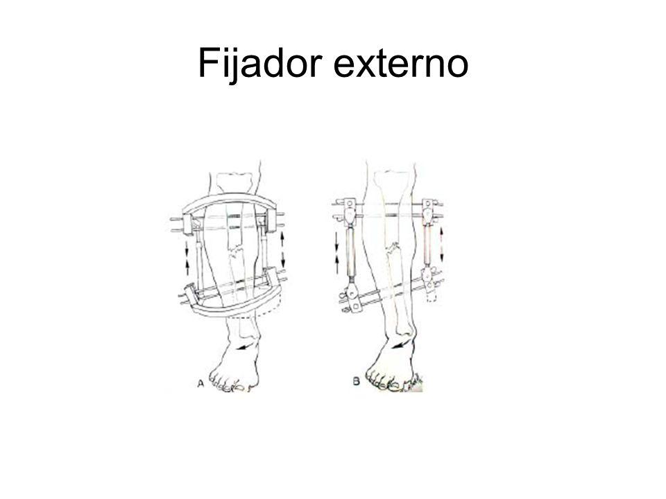 Fijador externo