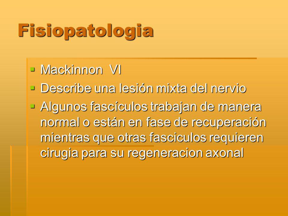 Fisiopatologia Mackinnon VI Describe una lesión mixta del nervio