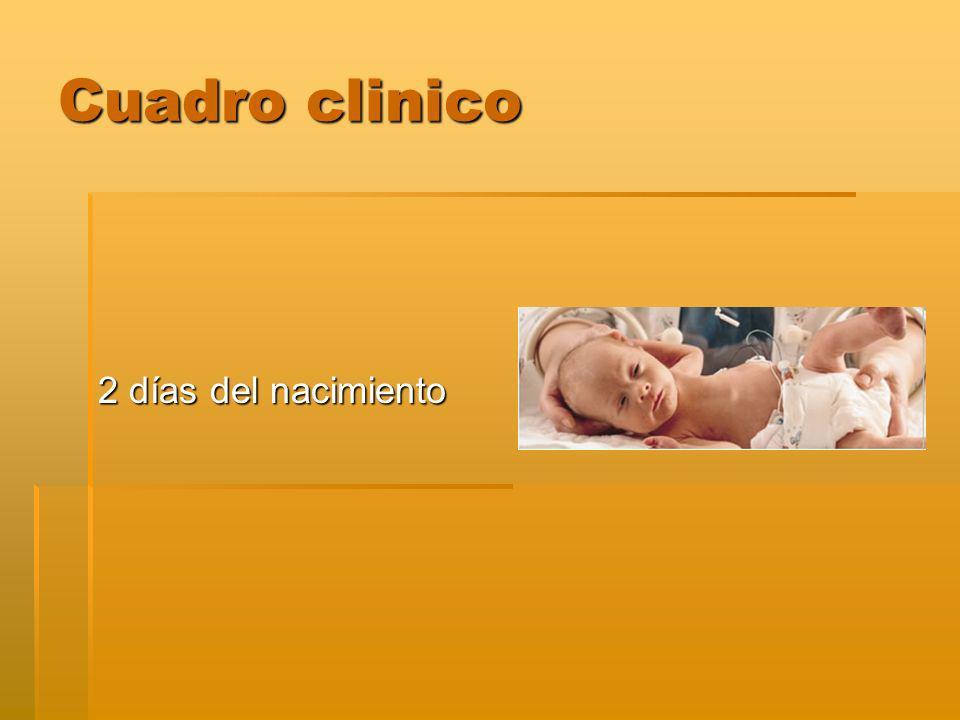 Cuadro clinico 2 días del nacimiento