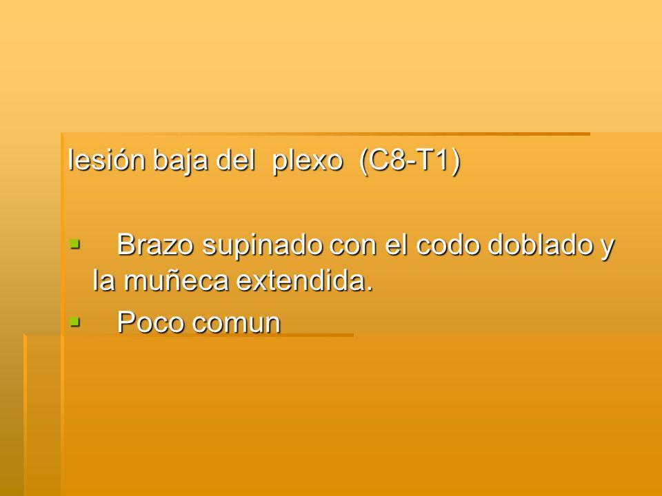 lesión baja del plexo (C8-T1)