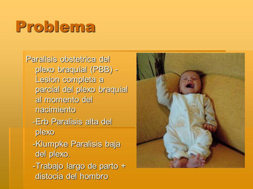 Problema Paralisis obstetrica del plexo braquial (PBB) -Lesion completa a parcial del plexo braquial al momento del nacimiento.
