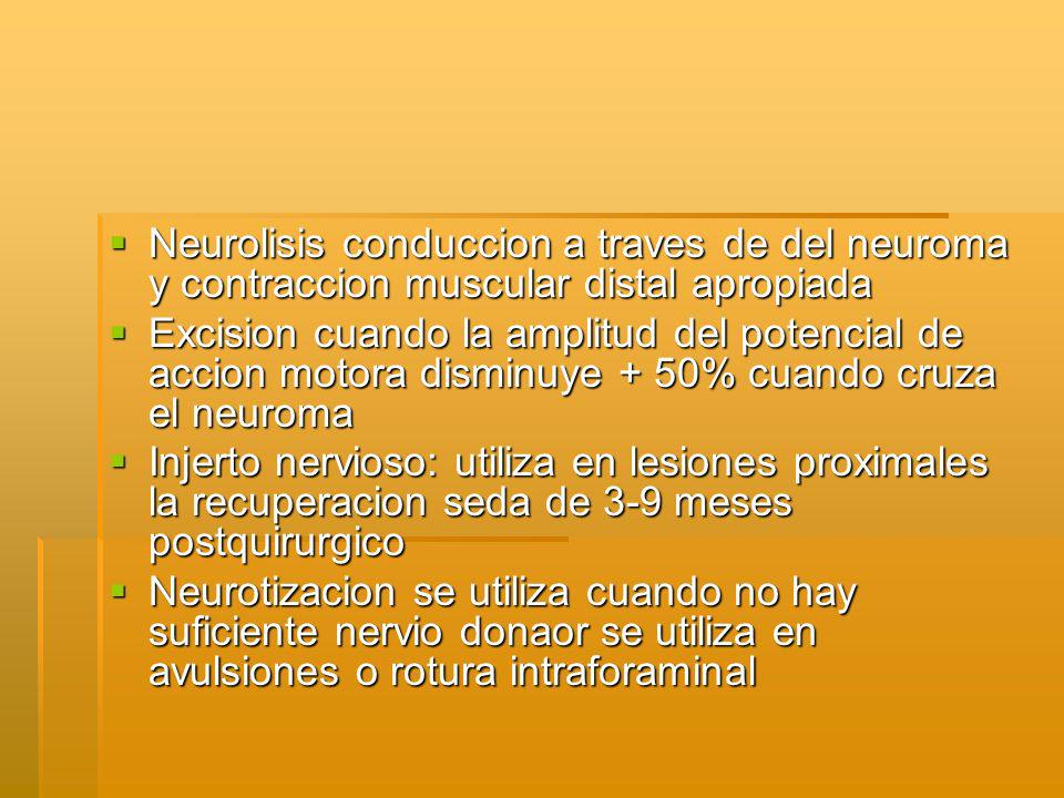 Neurolisis conduccion a traves de del neuroma y contraccion muscular distal apropiada