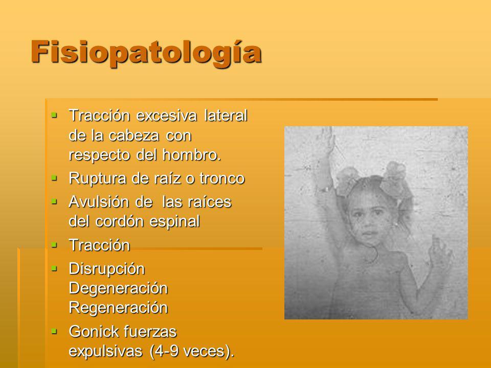 Fisiopatología Tracción excesiva lateral de la cabeza con respecto del hombro. Ruptura de raíz o tronco.