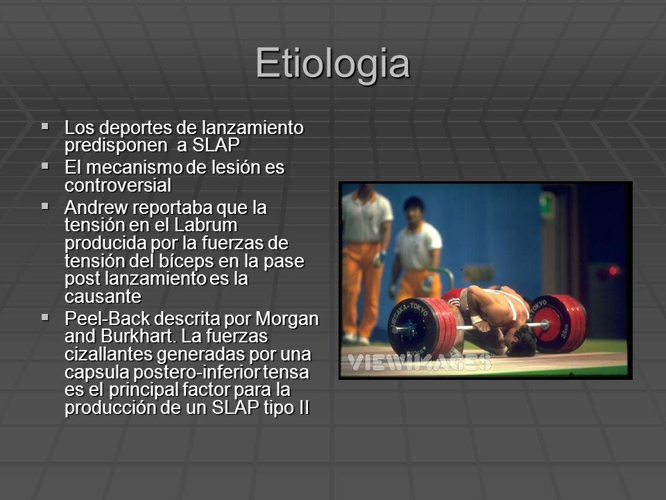 Etiologia Los deportes de lanzamiento predisponen a SLAP