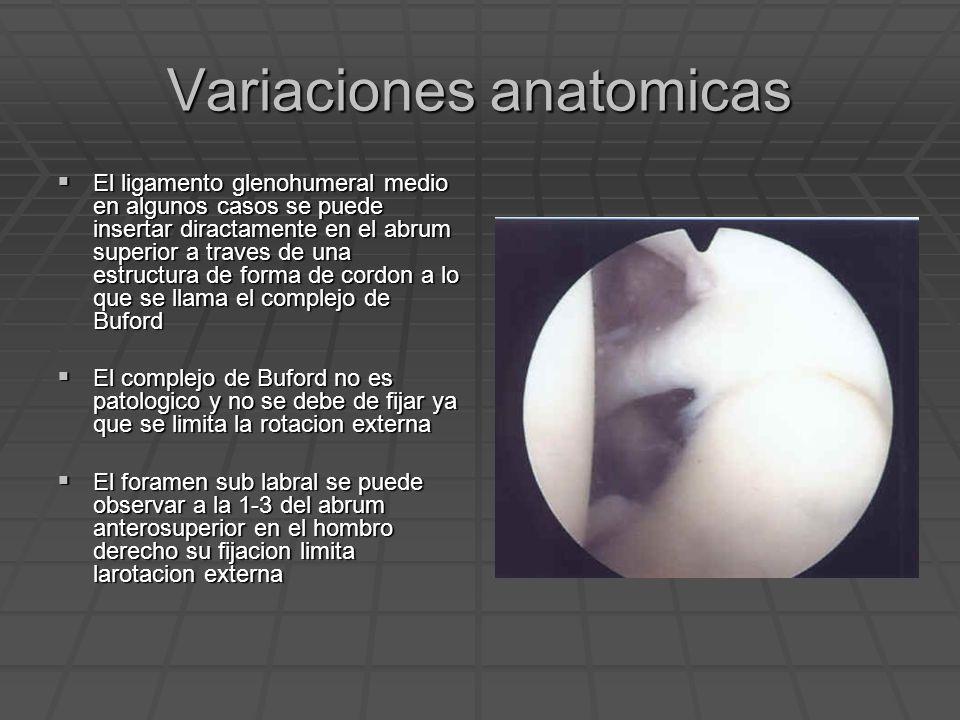 Variaciones anatomicas