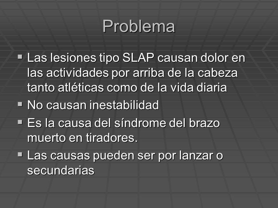Problema Las lesiones tipo SLAP causan dolor en las actividades por arriba de la cabeza tanto atléticas como de la vida diaria.