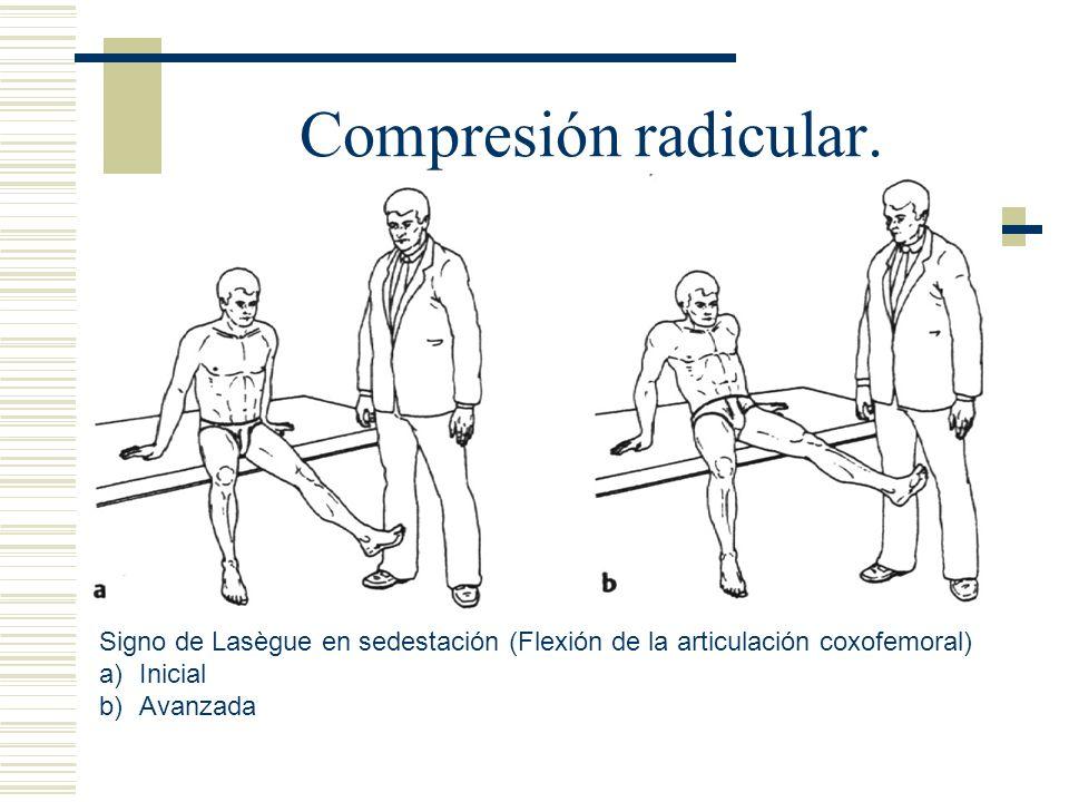Compresión radicular.Signo de Lasègue en sedestación (Flexión de la articulación coxofemoral) Inicial.