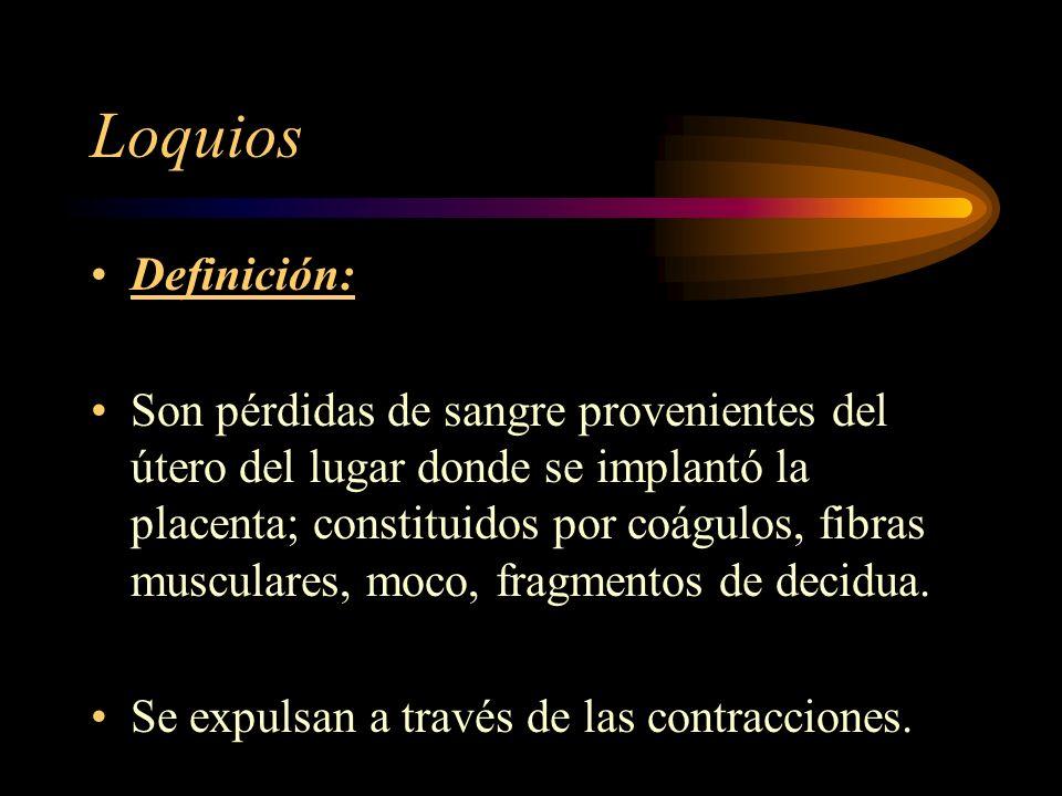 Loquios Definición: